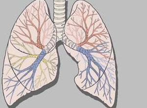 气管纵隔和心脏向健侧移位